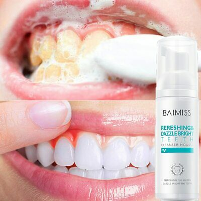 Tooth Cleaning Mousse Toothpaste Oral Hygiene Removes Plaque Stains Bright Teeth • 4.45£