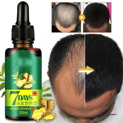AU33.56 • Buy 7 Days Fast Hair Growth Oil Ginger