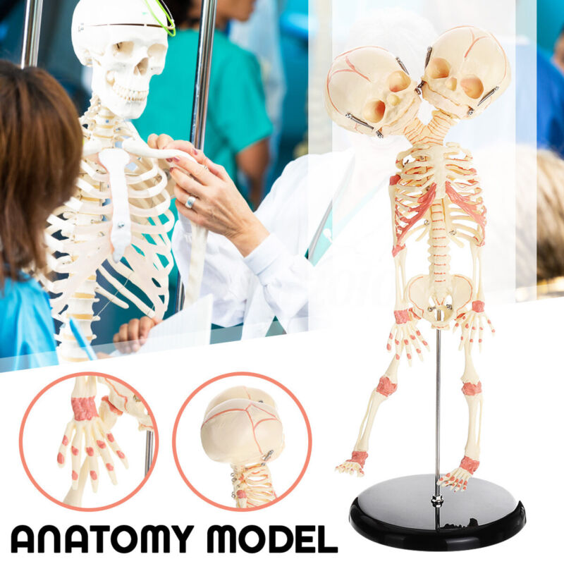 $30.64 • Buy  Baby Skull Double Head Human Research Model Skeleton Anatomical Brain Anatomy